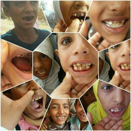 """أطباء  :  تسمم """" الفلورايد """" يهدد حياة عشرات الأطفال بالضالع """" صور """""""