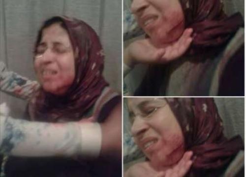 اعتقال طالب مغربي شوه وجه معلمته بأداة حادة