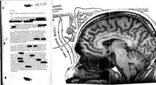 وثيقة سرية لعلاج السرطان أخفتها المخابرات الأمريكية 34 عامًا لأسباب غامضة