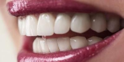 الأسنان البيضاء لا تعني بالضرورة أنها صحية