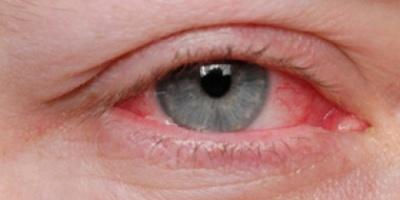 أعراض التهاب العين ونصائح لتجنبها
