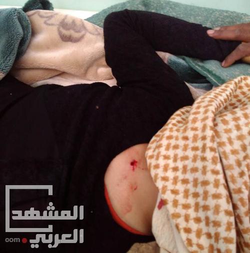 تعز.. اصابة امرأة عشرينية برصاص قناص حوثي
