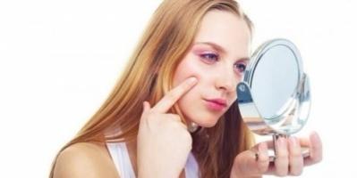 3 أسباب لتورم الوجه ونصائح لمواجهتها