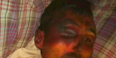وفاة مختطف تحت التعذيب في سجون الحوثيين بمدينة دمت بالضالع