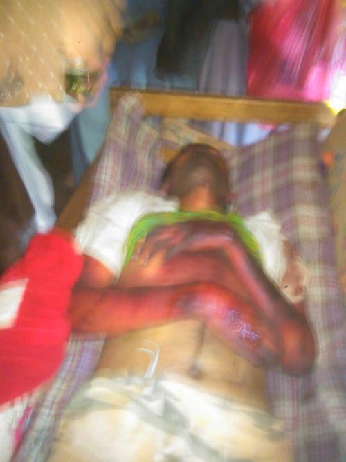 مقتل مواطن  تحت التعذيب في سجن  الحوثيين بمدينة إب