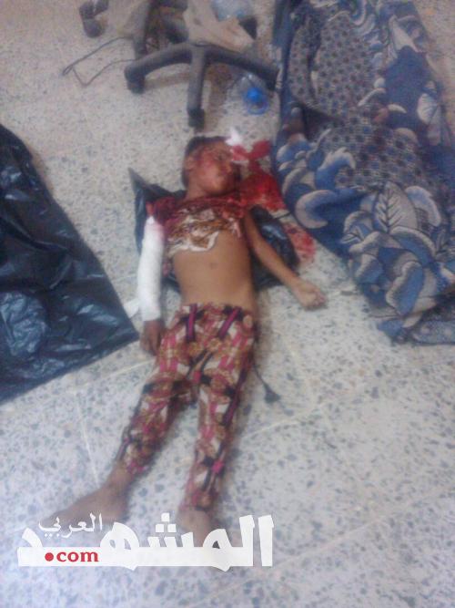 إستشهاد «5» مدنيين واصابة «3» اخرين في قصف مدفعي للحوثيين على الخوخة