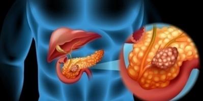 فيروس إنفلونزا معدّل وراثياً لمحاربة سرطان البنكرياس