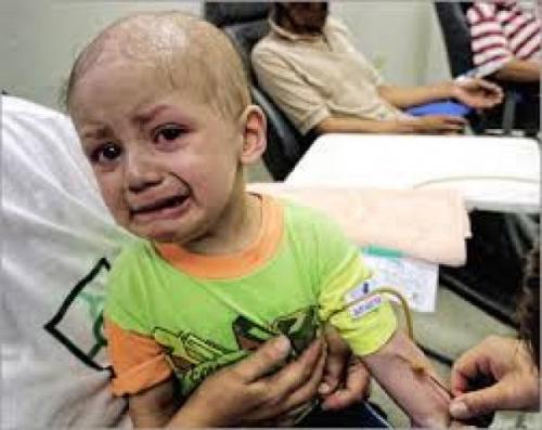 «30» ألف حالة سرطان سنويا في اليمن