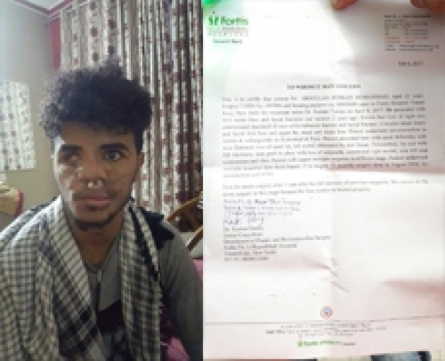مكتب الجرحى في الهند يوضح بشأن الجريح عبدالله حسين