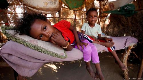 البنك الدولي: أكثر من ثلاثة ملايين طفل وحامل ومرضع يعانون سوء التغذية الحاد في اليمن