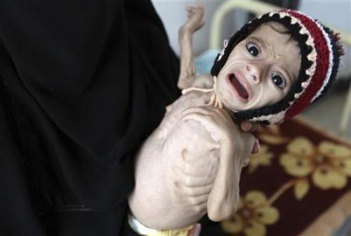 الأمم المتحدة تعلن تخصيص 9.1 مليون دولار لدعم الاحتياجات الصحية العاجلة في اليمن