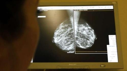 اكتشاف 24 طفرة جينية مجهولة تزيد خطر الإصابة بسرطان الثدي