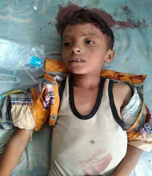 مقتل طفل في التاسعة من عمره برصاص قناص حوثي في طور الباحة
