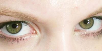 فقدان التناسق العيني يؤثر على القراءة