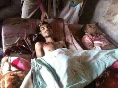 مقتل شقيقين برصاص كل منهما إثر خلافعلىسلة غذائية في حجة