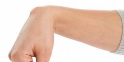 علاج الكيس الدهني في اليد عن طريق شفط الدهون