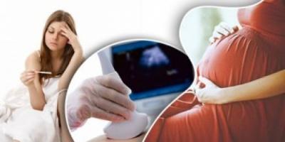 اضرار نقص الصفائح الدموية عند الحامل