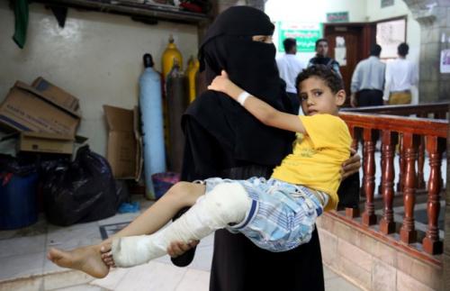 الحرب... أفقدت أطفال اليمن أحلامهم وآمالهم وتعليمهم (تقرير)