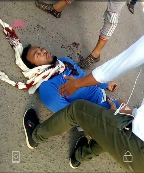 امن عدن يضبط  أرهابي خلال تنفيذه عملية اغتيال بعدن بعد اصابته «صورة»