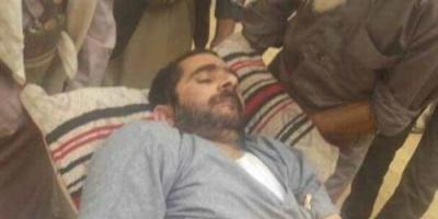 """صور.. مختطف يصاب بـ """" شلل تام """" جراء التعذيب بسجون الحوثي"""