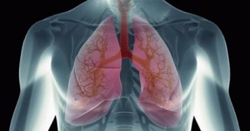 أسباب سرطان الرئة .. التدخين أكبر عامل مساعد على حدوثه