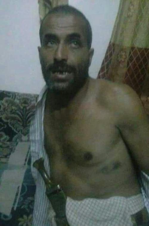 ذمار .. اختطاف مواطن وضربه ضرباً مبرحاً من قبل الحوثيين