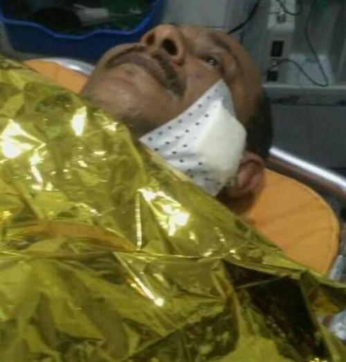 """وكيل الـ""""تمبل"""" والـ""""زردة"""" يتعرض لمحاولة اغتيال في عدن (صورة)"""