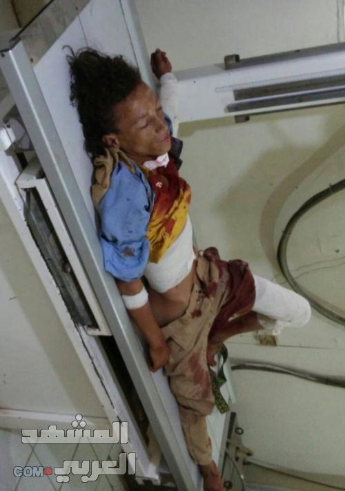 إصابة 3 أطفال بقذائف مليشيات الحوثي غرب مريس