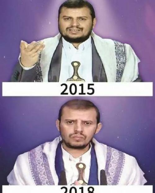 صورة .. بعد 3 سنوات من انطلاق العاصفة .. زعيم الحوثيين.. من الغرور إلى الذل