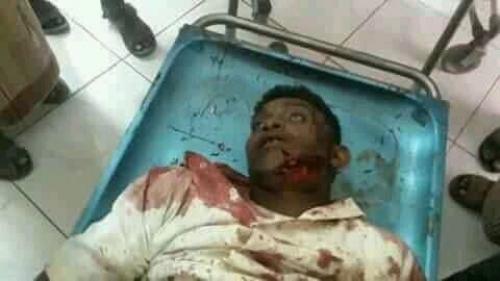 مقتل شاب تخطى مشرف حوثي بدراجته النارية في الحديدة