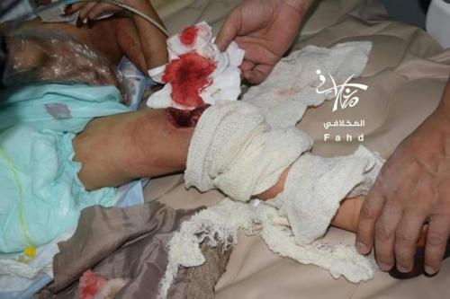 إصابة مدنيين اثنين بانفجار عبوة ناسفة وسط تعز