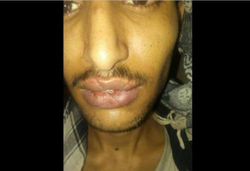 سجين يمني في إب يخيط فمه احتجاجاً على استمرار حبسه