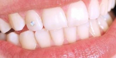وصفات طبيعية للتخلص من اصفرار الأسنان بقشر الليمون