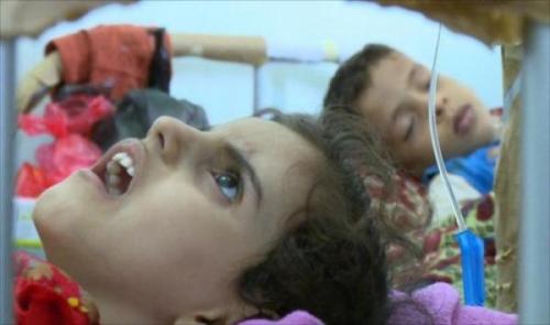 وباء الحصبة يفتك بالأهالي في شبوة والحصيلة الأولية وفاة 5 أطفال وإصابة أكثر من 350