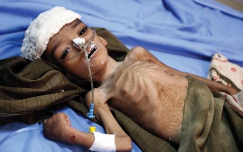 الميليشيات تشترط علاج جرحاها مقابل تطعيم اليمنيين ضد الكوليرا