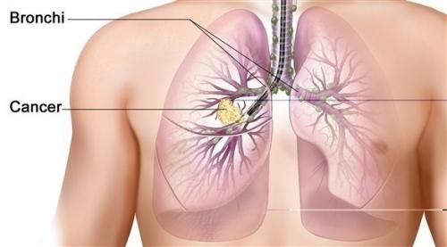 دراسة تكشف سبب صعوبة علاج سرطان الرئة