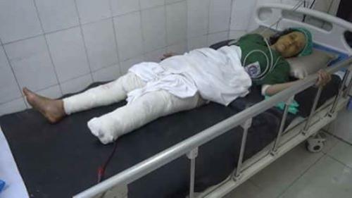 إصابة أم وطفليها بجروح في انفجار لغم حوثي بجبل حبشي بتعز