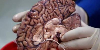 لأول مرة.. تحديد الجينات المسؤولة عن تطور الدماغ البشري