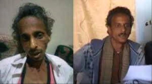 وزارة حقوق الانسان تحمل مليشيا الحوثي مسؤولية التعذيب التي أودت بحياة الصحفي أنور الركن