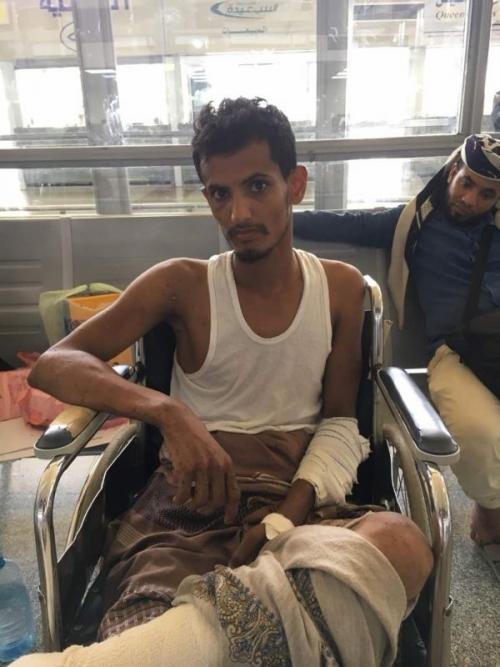 مكتب جرحى الساحل الغربي يسفر 15جريحا إلى مصر لتلقي العلاج على نفقة الإمارات