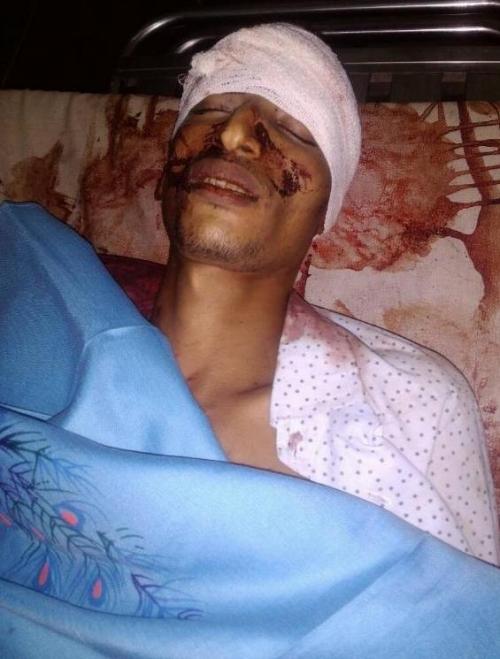 مقتل شخصين بمسيمير لحج وقوات الحزام الأمني تلقي القبض على المتهمين