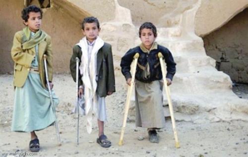 تقرير دولي يتهم الحوثيين بتعمد زرع الألغام بمعدل مخيف جداً