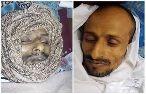 وفاة مواطن جراء تعرضه للتعذيب في أحد سجون مليشيا الحوثي في إب