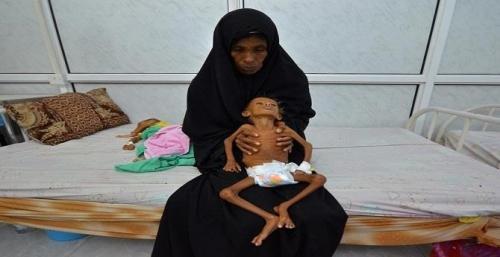جرائم الحوثي تتسبب في وفاة 46 شخصا بمرض الكوليرا بالحديدة