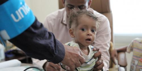بسبب جرائم الحوثي: طفل يمني يموت كل 10 دقائق