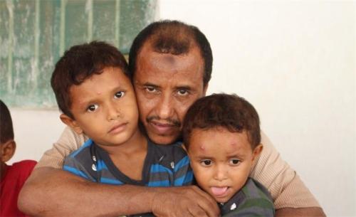 بعد خروجه من القبر ومحاولة دفنه حياً.. يمني يكشف خفايا التعذيب الذي لاقاه في سجون المليشيا
