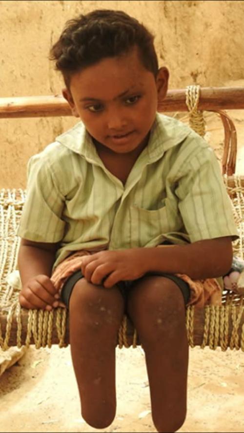 بالصورة .. قصة الطفل «درهم» مأساة تروي للأجيال فضائع وبشاعات إجرام مليشيا الحوثي