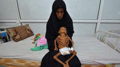 «يونيسف»: وفيات الكوليرا باليمن تجاوزت 2300 حالة