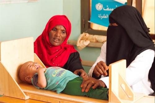 400 ألف طفل يمني يعانون من سوء التغذية الحاد