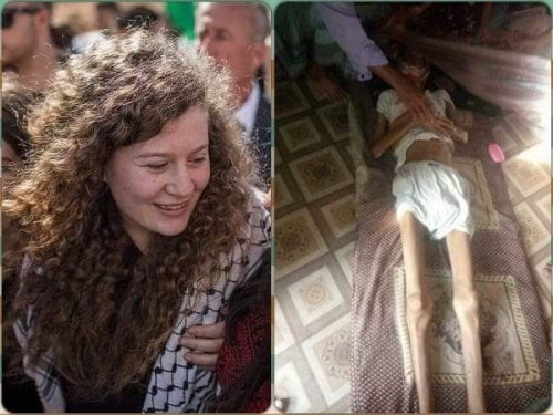 شاهد الفرق بين سجون الاحتلال الإسرائيلي وميليشيا الحوثي